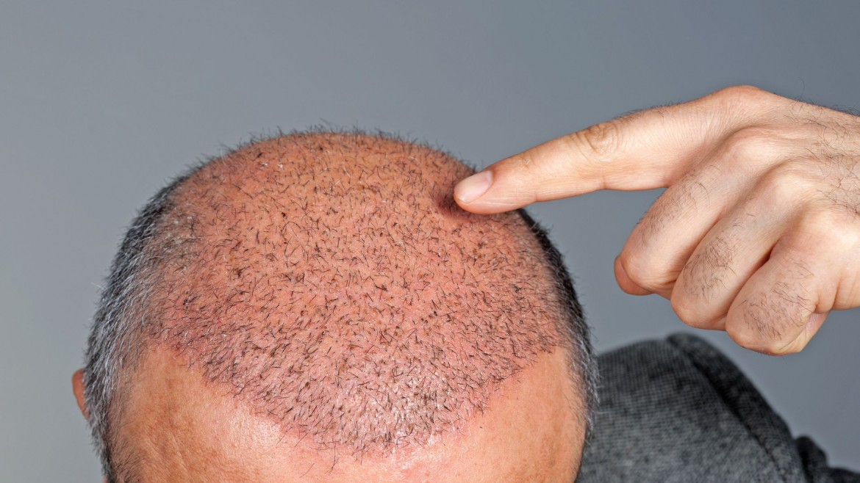 Nano Follicle Hair Transplant