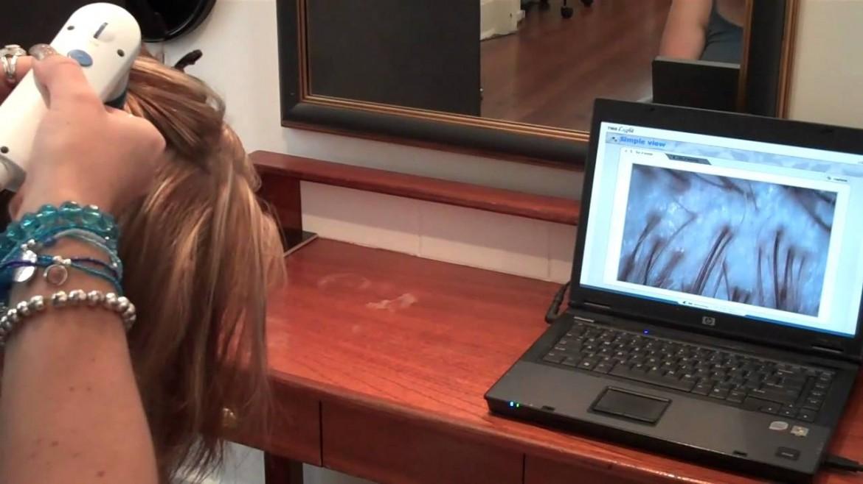 Nano Hair Analysis